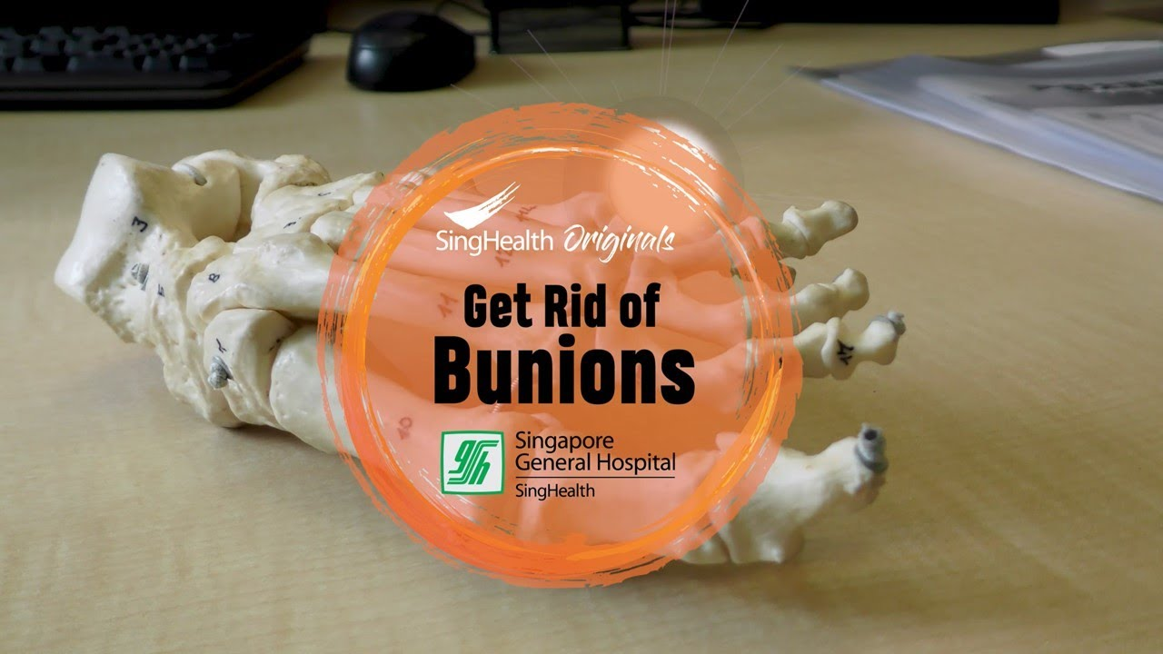 SingHealth – Get Rid of Bunions!